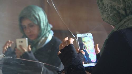 Suriyeli Emani savaşın izini yüzünde taşıyor