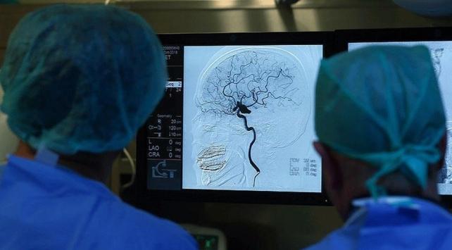 Afrikanın ilk beyin dokusu bankası kuruluyor
