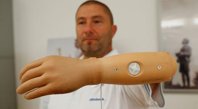 Tuşlu biyonik kol uzvunu kaybedenlere yardımcı oluyor