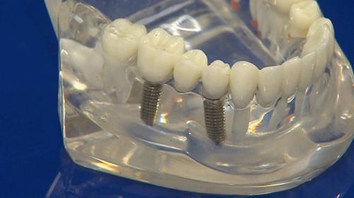 Samsunda yerli ve milli imkanlarla implant üretildi