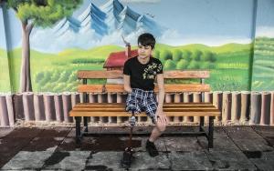 Savaş mağduru çocukların protez mutluluğu