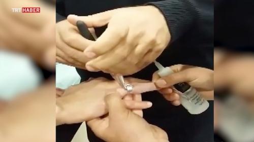 Parmağa sıkışan yüzüğü itfaiye ekipleri çıkardı