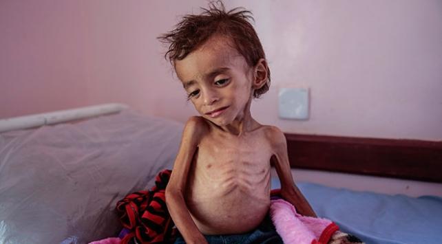 Yemenli babaların tek hayali çocuklarına yiyecek götürebilmek