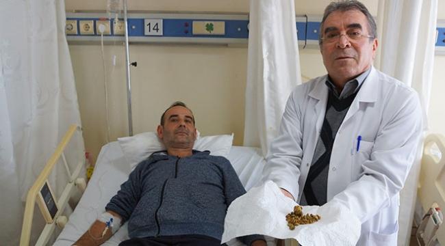 Karın ağrısıyla gittiği hastanede vücudundan 250 taş çıkarıldı