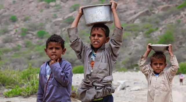 Yemende kıtlık en çok çocukları vuruyor