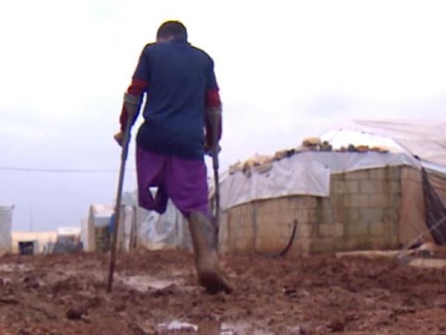 Suriyeli Muhammed protez bacağını kirlenmesin diye kullanmıyor